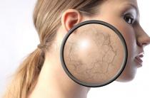 Какие масла от морщин подойдут для сухой кожи лица: ТОП лучших из лучших