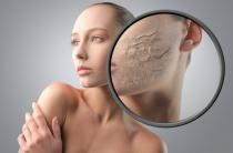 Маски от морщин для сухой кожи лица: самые популярные рецепты
